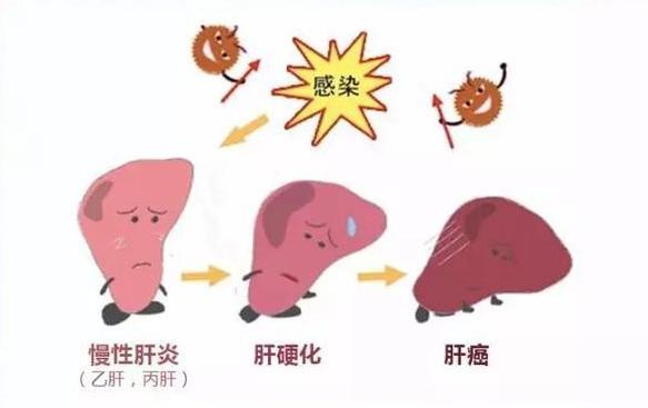 肝癌病人可以吃灵芝孢子粉吗?灵芝孢子粉对肝癌的治疗作用?